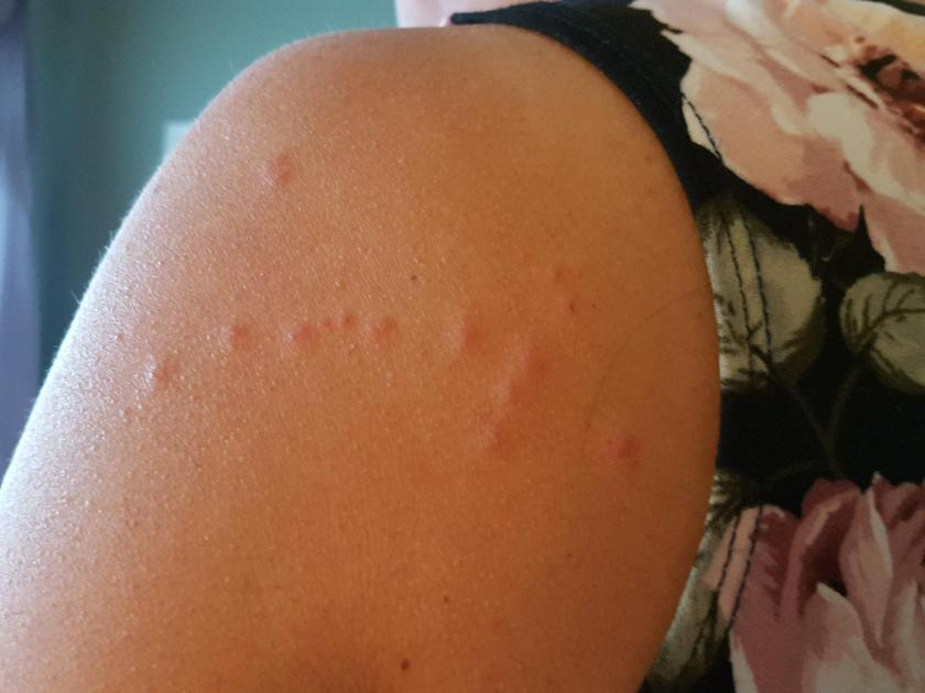 Constellation of Bug Bites
